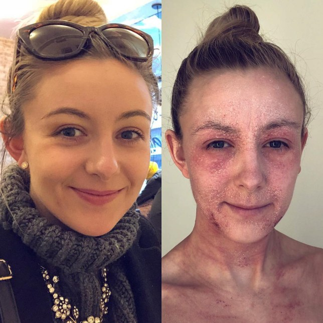 Laurie shows her skin before it became so bad, and during TSW in 2019. BIRMINGHAM, UK: THIS WOMAN stopped using steroid creams to treat her eczema and is embracing the inflamed skin she has been left with after her damaged skin flaked onto a fellow rail commuter, but her secret weapon is her acrylic nails which stop her from being able to scratch. Events planner, Laurie Williams (26) from Birmingham, UK, has suffered with eczema for as long as she can remember, but what once just affected the creases of her arms and legs is now affecting over 70 per cent of her body, including her face. Before eczema took over her life, Laurie could treat minor flare-ups with E45 cream and summer sunshine helped rid her of the problem. In December 2016 her eczema became progressively worse and Laurie was given a skin plan which included using the steroid creams Eumovate and Metosyn twice a day. Unfortunately, scratching through the night stopped Laurie from sleeping properly and she was later prescribed antihistamines and Atarax to help her sleep by reducing the itchiness. Laurie hadn???t seen improvement in her skin by the end of summer last year which she considered odd as the sun always helped to clear her skin. This led Laurie to do some research after coming across topical steroid withdrawal (TSW) through Instagram as users warned her of the dangers of what she was applying. In January 2019 Laurie stopped using all steroids and creams in favour of treating her skin naturally. The withdrawal caused Laurie???s skin to become broken and flaky, leading her to cancel social engagements out of fear of people seeing her skin. Now, Laurie is healing her skin through a plant-based diet and takes oat baths because the water in a normal bath burned her skin. Laurie stopped wearing makeup because the skin on her face is too damaged, but she has found the positives of wearing acrylic nails which stop her from being able to scratch and break her skin. MDWfeatures / Laurie Williams