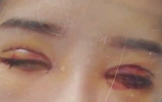 Pic shows: Liu after surgery. CHINA: Bungling doctors a plastic surgery clinic sliced off part of a woman???s eyelid which will never grow back - but are only willing to give her 2,200 GBP in damages.