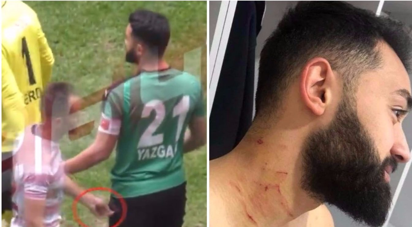 Turkish footballer Mansur Calar accused of slashing opposition players with razor blade