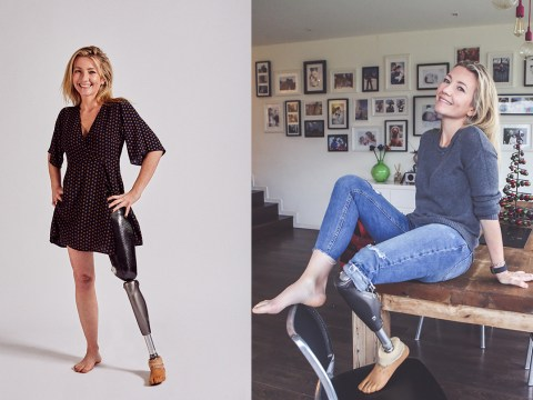 Amputee who hid her leg for years out of shame now inspires others to embrace their differences