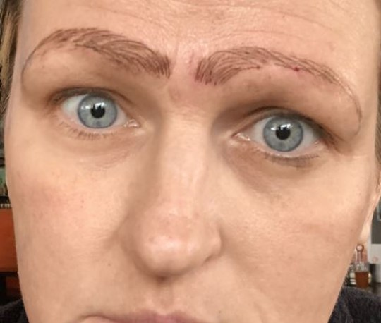 Woman Got Dumped After Discount Microblading Treatment Left Her With