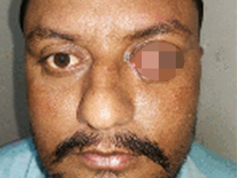 Man's eye nearly gouged out by cow's horn