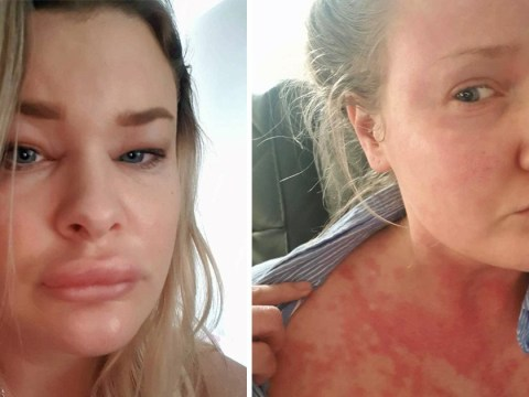Mum suffers from chronic skin condition that makes her look like she's had 'dodgy lip fillers'