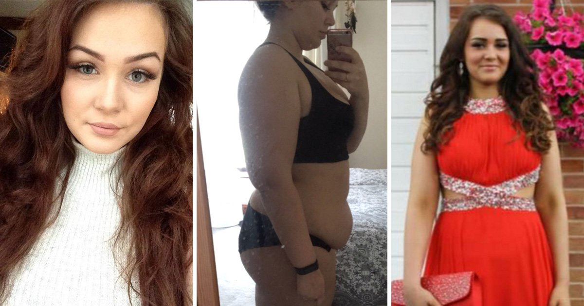 Woman accused of secret eating after rare condition made her put on eight stone