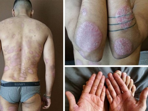 Man's extreme psoriasis means he can't walk, wear clothes or see properly