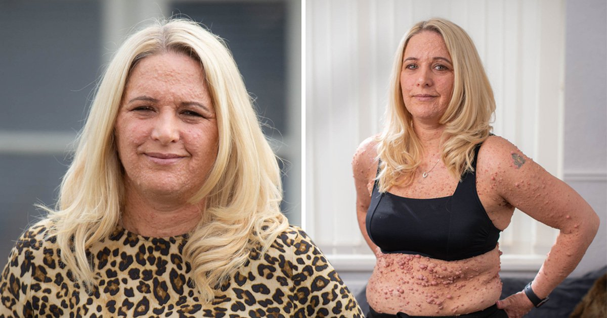 Mum won't let her rare skin condition stop her wearing a bikini