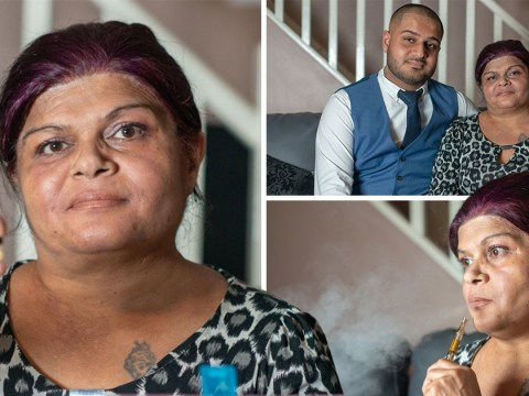 Mum with terminal cancer baffles doctors by 'treating herself with cannabis oil'
