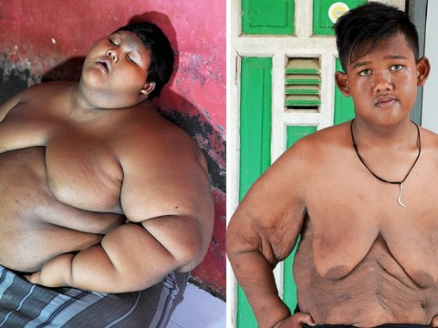 Fattest kid in the world loses nearly 16st – almost half his body weight