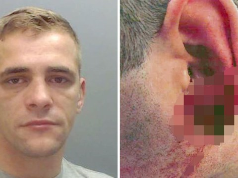 Man bit hole in policeman's ear while trying to avoid being arrested