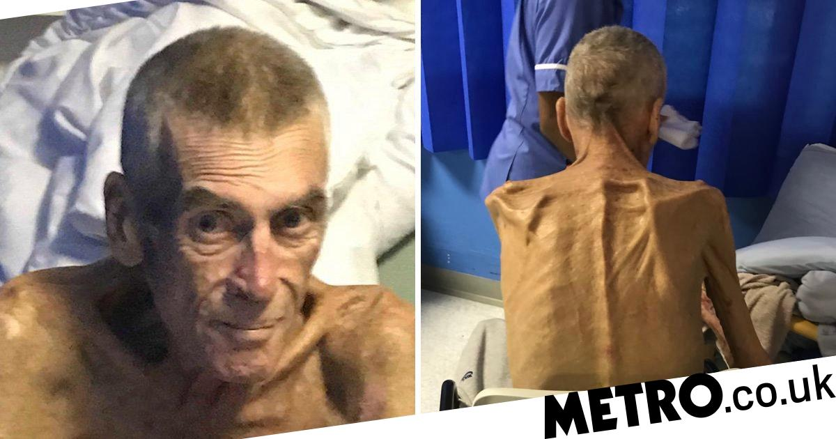 Starving man deemed 'fit to work' at just 6st dies