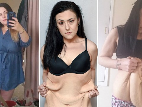 Woman is raising £12,000 to get rid of excess skin after losing half her body weight