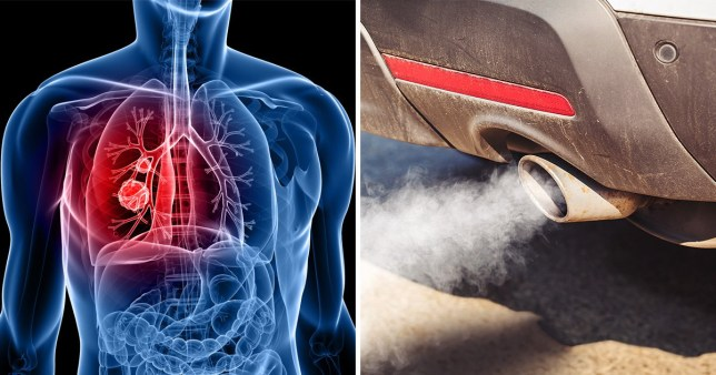 One in six lung cancer deaths are not linked to smoking