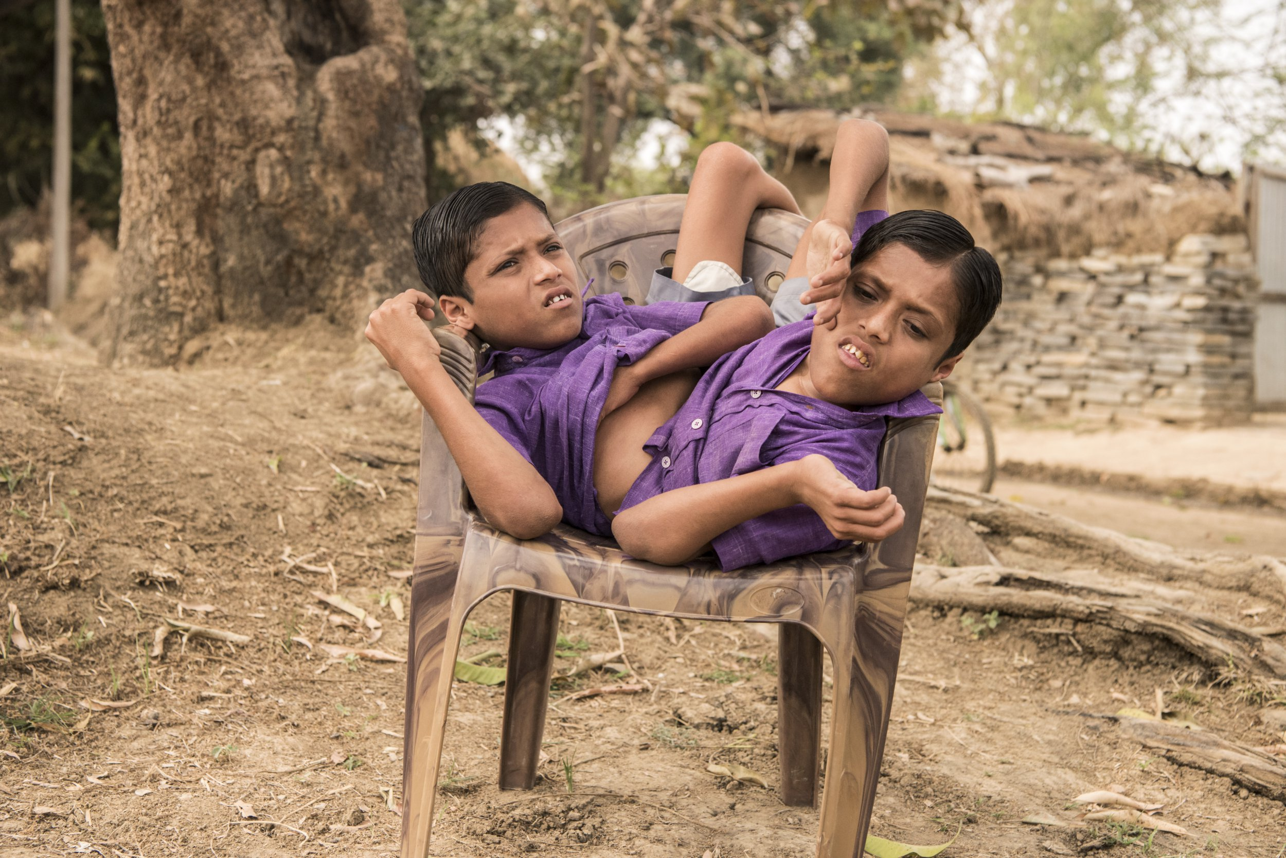 Conjoined twins who never want to be separated turn 18