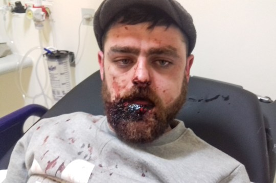 Pic from Caters News - (PICTURED: Christopher Robson, 26 from Coventry in hospital after he was punched in the face and had his jaw broken after a thug asked him for 60p and he told him he did not have the money on him. Pic taken: 03/04/2019) - A dad-to-three who was savagely beaten while he was out with his heavily pregnant girlfriend claims a homeless man broke his jaw over 60p. Chris Robson, 26, from Coventry, was walking towards a pub in Earlsdon with his pregnant girlfriend, Sonia Richards, 30, when they were approached by a man asking them for 60 pence. SEE CATERS COPY