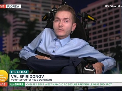 Volunteer changes his mind about having first 'head transplant'