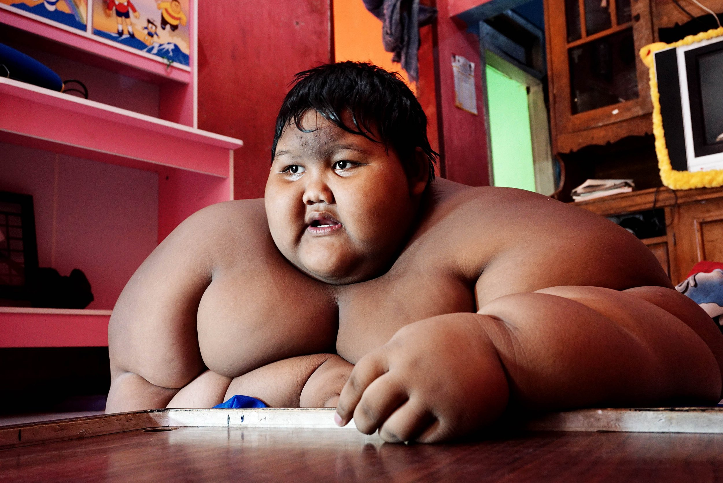 *** EXCLUSIVE - VIDEO AVAILABLE *** ***FILE PHOTOS*** WEST JAVA, INDONESIA - JUNE 13: Arya Permana 10-year-old who weights 192 kilograms sleeping in his home on June 13, 2016 in West Java, Indonesia. A THIRTEEN-year-old boy, who once weighed 423llbs, has lost over half of his body weight thanks to weight loss surgery and is now looking to have his excess skin removed. Once known as the heaviest child in the world, Arya Permana, from Karawang, West Java, Indonesia is now an active 13-year-old after losing an incredible 220lbs. When he was 10-years-old - and at his heaviest - Arya weighed 423lbs (over 30 stone or 192kg) ? the same as six boys his same age. But for all the ways that his life has improved, the weight loss has resulted in a large amount of excess skin on Arya?s arms and chest in particular. The teenager is hoping to have skin removal surgery, at the Hasan Sadikin Hospital in Bandung, after completing the national exams. PHOTOGRAPH BY Jefta Images / Barcroft Images