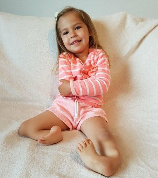 Victoria Komada, 3 before she had one of her legs removed and one of them straightened. See SWNS copy SWCAmiracle: A 'one in a million' three-year-old born with both legs bent BACKWARDS has walked for the first time - after the public helped raise 180K for 'miracle' surgery. Victoria Komada has bilateral tibial hemimelia - a congenital deformity which causes babies to be born with deformed legs and missing bones. Victoria had faced with losing both her legs when doctors said the only solution was a double amputation.
