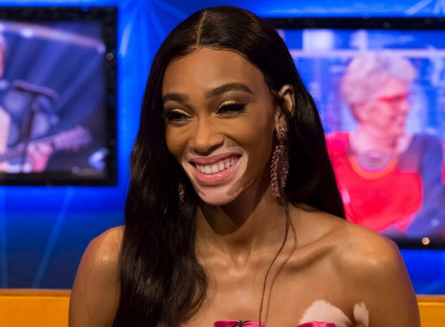 Mandatory Credit: Brian J Ritchie/Hotsauce Editorial Use Only. No Merchandising - STRICTLY EMBARGOED UNTIL 00.01 ON FRIDAY 19TH APRIL 2019 Mandatory Credit: Photo by Brian J Ritchie/Hotsauce/REX (10213048k) Winnie Harlow 'The Jonathan Ross Show' TV show, Series 14, Episode 8, London, UK - 20 Apr 2019