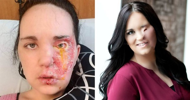 Mum who fell on hair curler and burnt her face during epileptic attack wants people to look beyond the scars
