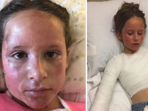 Girl, 9, horrifically scalded by boiling soup after Instant Pot 'explodes' in her face