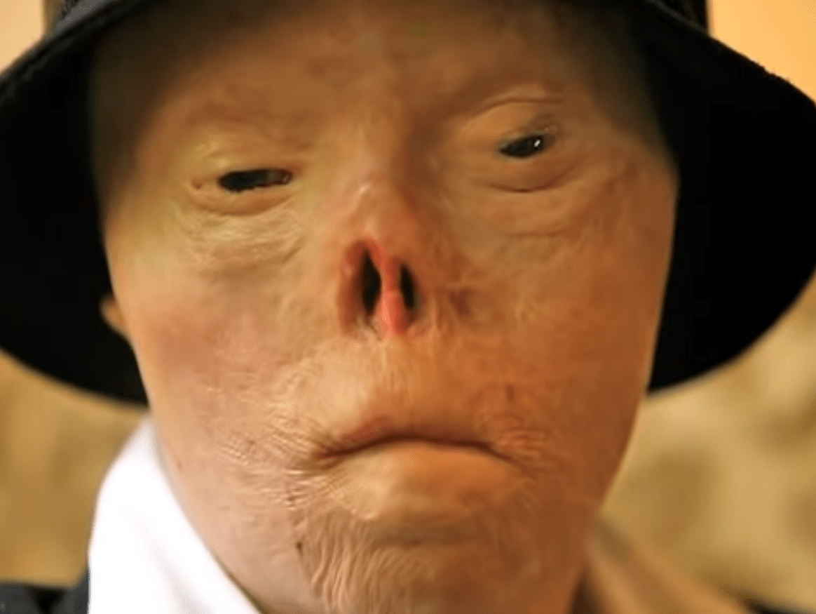 Woman who was terribly disfigured after being hit by drunk driver dies of cancer aged 40