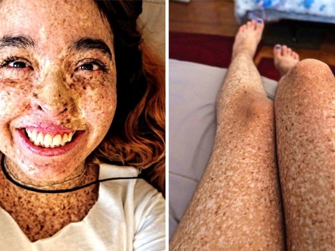 Woman's rare skin condition makes her allergic to sunlight and she can't go out during the day