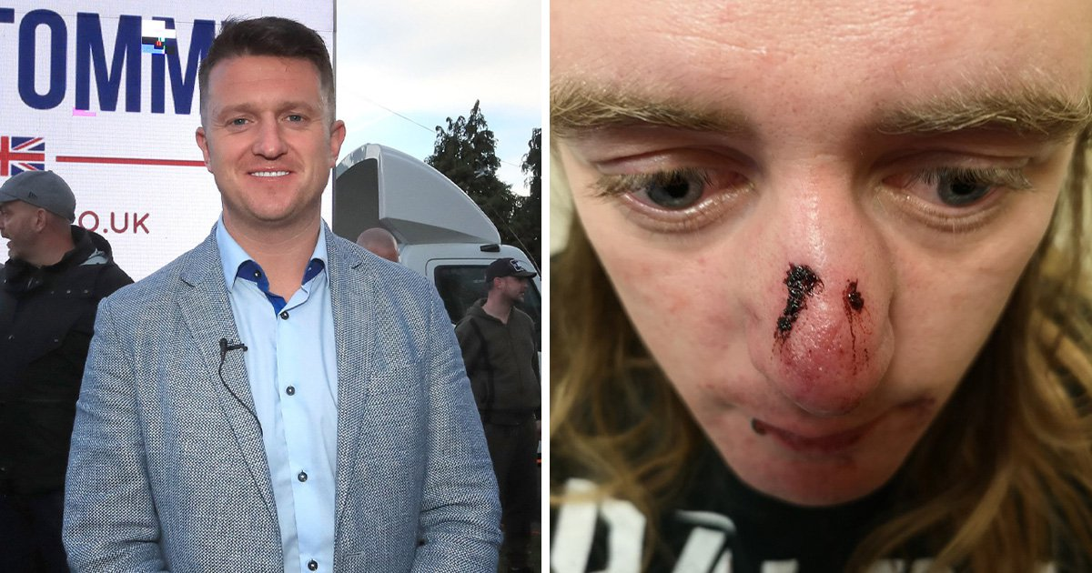 'Tommy Robinson supporters' broke anti-racism activist's nose during brawl