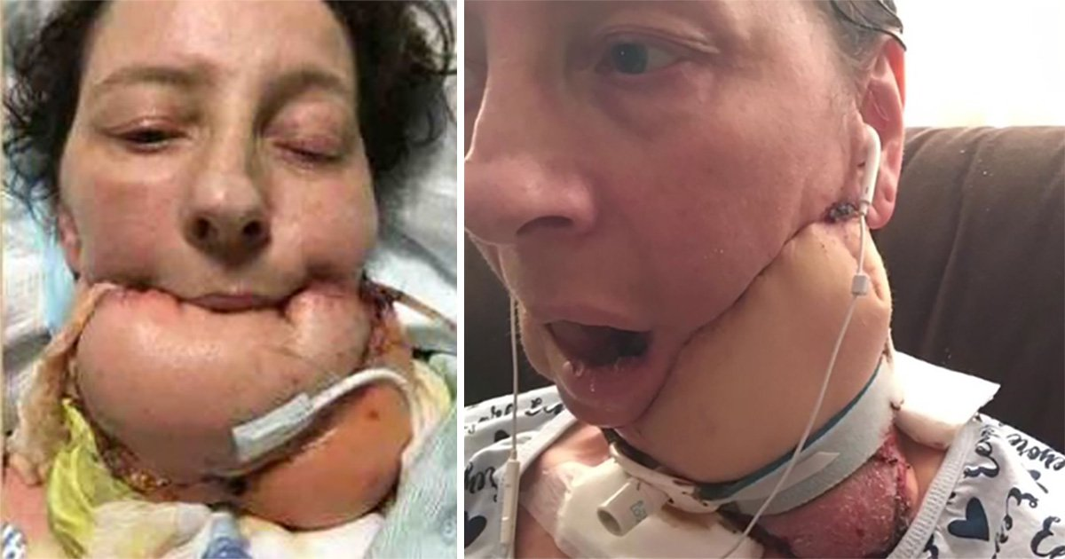 Mum diagnosed with three cancers can't speak and hasn't eaten for four years