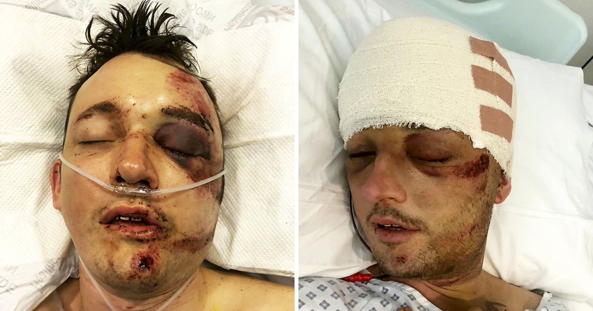 'Find the thugs who did this to my husband then left him for dead'
