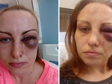 Woman may never see properly again after jealous boyfriend fractured eye socket