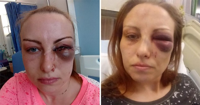Domestic abuse survive Adele Semple has warned other victims to get out of their abusive relationships before it's too late. Picture of her injuries.