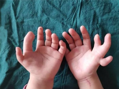 Girl born with 14 fingers has life-changing surgery
