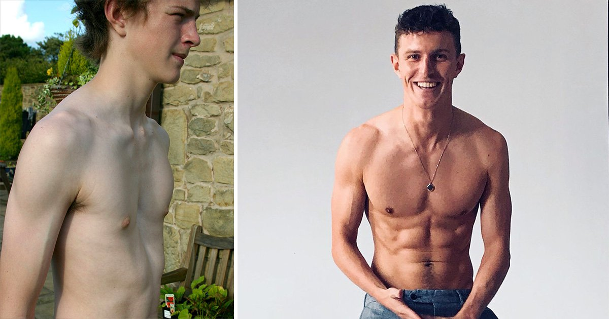 Man born with deformed 'caved in' chest is now a Calvin Klein model