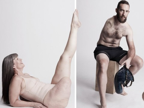 Stunning photoshoot features models with limb differences