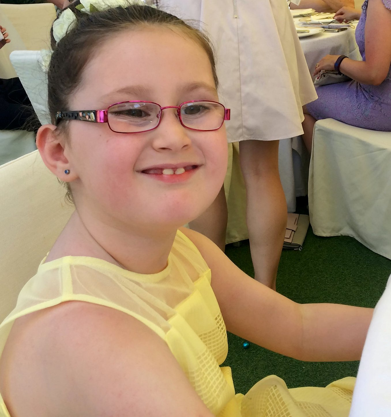 """Kiera Woodhouse,7 of Nottingham before the dog attack June 2018 whilst on holiday in Italy. An autistic schoolgirl has been left """"mentally scarred"""" after she was left with horrific facial injuries from a vicious dog attack. See SWNS story SWMDmaul. Kiera Young, 7, had her lip ripped off after stoking a white and black Akita outside the Witham Tavern, Boston, on February 27 just after 2pm. Her grandmother Sharon Young, 57, had taken her to the pub for her sister Debbie Hayes 60th Birthday. The mum-of-two, from Nottingham walked, whilst Kiera was driven down by Debbie. The 57-year-old said she heard her granddaughter screaming across the river and dashed to the scene. She saw Kiera bleeding from her mouth and rushed her to Pilgrim Hospital, Boston, where her wounds were cleaned. The youngster, spent nearly three hours in surgery at Lincolnshire Hospital the next day to repair her facial injuries. Kiera was diagnosed with autism at the age of three and struggles to eat and keeps her distance when ever she see a dog in the street since the attack. Sharon, who been Kiera's carer since she was 11 months old, said she has still not received an apology from the dog's owners."""