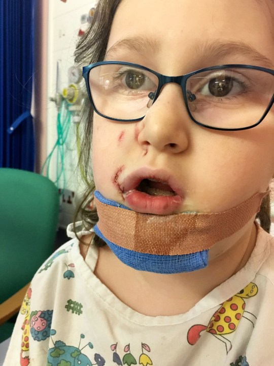 "Kiera Woodhouse, 7 of Nottingham after reconstructive surgery at Lincoln Hospital, 2018. An autistic schoolgirl has been left ""mentally scarred"" after she was left with horrific facial injuries from a vicious dog attack. See SWNS story SWMDmaul. Kiera Young, 7, had her lip ripped off after stoking a white and black Akita outside the Witham Tavern, Boston, on February 27 just after 2pm. Her grandmother Sharon Young, 57, had taken her to the pub for her sister Debbie Hayes 60th Birthday. The mum-of-two, from Nottingham walked, whilst Kiera was driven down by Debbie. The 57-year-old said she heard her granddaughter screaming across the river and dashed to the scene. She saw Kiera bleeding from her mouth and rushed her to Pilgrim Hospital, Boston, where her wounds were cleaned. The youngster, spent nearly three hours in surgery at Lincolnshire Hospital the next day to repair her facial injuries. Kiera was diagnosed with autism at the age of three and struggles to eat and keeps her distance when ever she see a dog in the street since the attack. Sharon, who been Kiera's carer since she was 11 months old, said she has still not received an apology from the dog's owners."