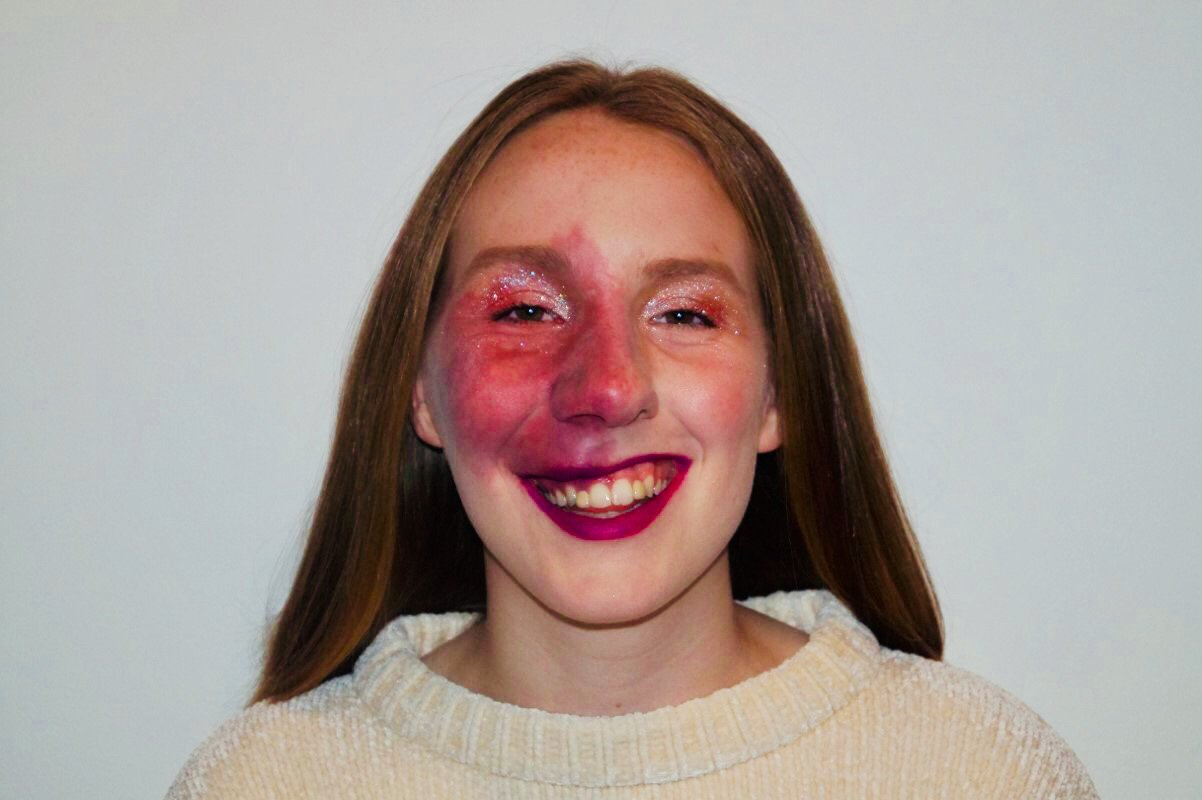 Student says abuse from strangers won't make her cover up birthmark on her face