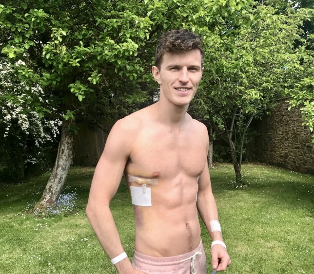 David James Seed was diagnosed with pectus excavatum at 12, a condition which caused his ribs to grow inwards