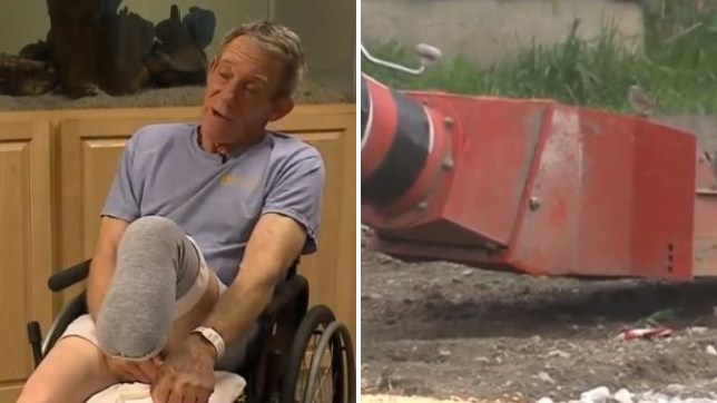 Image result for Farmer Saws Off His Own Leg With Pocket Knife After Becoming Stuck In Machinery