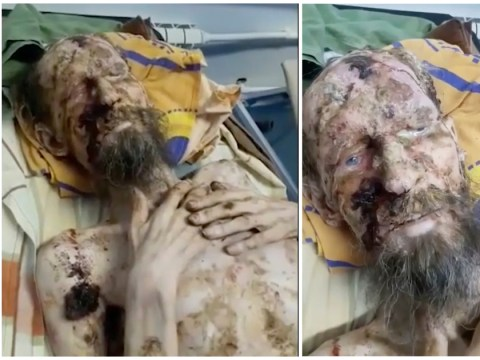 Man who looks like a mummy was 'never attacked by bear'