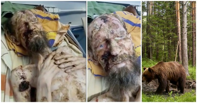 Man looks like a mummy after being rescued from bear den month after he vanished