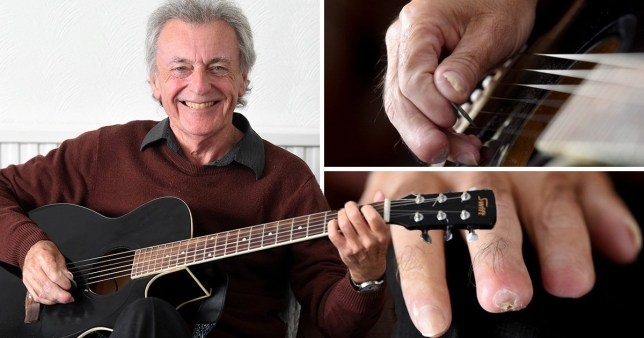 Comp of images of Alan Bowell, from Blackpool, who is still able to play guitar after losing two fingertips to sepsis thanks to hyperbaric oxygen treatment which sped up the healing process.