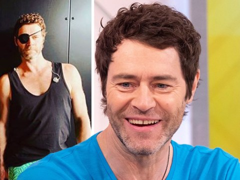 Take That's Howard Donald is now sporting a Madonna-esque eyepatch after fan incident