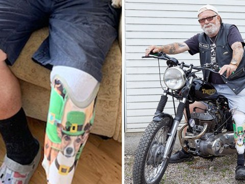 Man left heartbroken by dog's death gets its face superimposed on his prosthetic leg