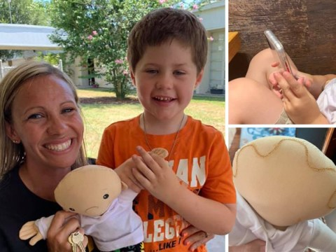 Boy with scars on head and abdomen overjoyed to receive doll that looks just like him