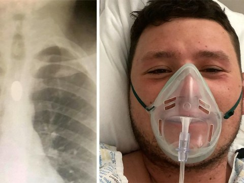 Roofer ends up in hospital after swallowing £1 coin in bizarre party trick