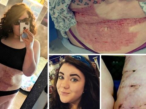 Burns survivor nicknamed 'burnt chicken' embraces her scars for first time
