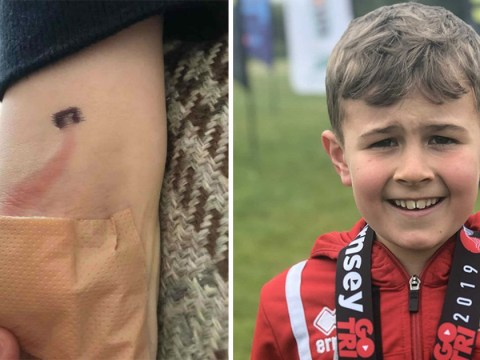 Mum saves son's life after spotting unusual sign of sepsis