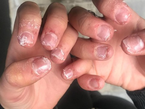 Teenager shares photos of her ragged fingers to warn of risks of fake nails