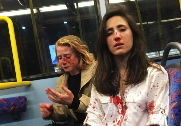 ?We were seen as entertainment, that?s what makes me so angry?This horrifying picture shows a Ryanair flight attendant and her girlfriend covered in blood after a gang of men savagely attacked them on a London bus.Melania Geymonat, 28, from Uruguay was riding the bus with her American girlfriend Chris after an evening out in West Hampstead in the early hours of Thursday May 30.Melania, who lives in Bishop's Stortford in Essex, says the pair decided to sit at the front on the top deck because they both enjoy the novelty of a double decker bus.Then a gang of young men behind them saw they were a couple and started to demand they kiss while making crude sexual gestures.She said: ?They wanted us to kiss so they could watch us. I tried to defuse the situation as I?m not a confrontational person, telling them to please leave us alone as Chris wasn?t feeling well.?The men, who were in their 20s or 30s, began throwing things and the couple told them to stop.?The next thing I remember was Chris in the middle of them and they were beating her,? Melania added.?I didn?t think about it and went in. I was pulling her back and trying to defend her so they started beating me up.?I don?t even know if I was knocked unconscious.?I felt blood, I was bleeding all over my clothes and all over the floor.?We went downstairs and the police were there.?Melania is waiting to find out if her nose was broken in the vile attack.She said there were at least four of them and one spoke Spanish while the others had a British accent. The attackers also robbed the couple before fleeing the bus.Melania, who moved to the UK in February and is on a year's sabbatical from her medical studies, says she felt safe as a gay woman in London and was stunned by the attack. She released the picture to raise awareness of violence against women and gay people.She added: ?It?s not something isolated, it?s common. We were seen as entertainment, that?s what makes me so angry.?The Met has been contacted for a comment.